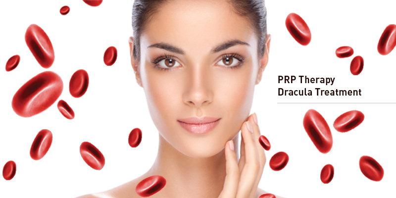 PRP-therpay