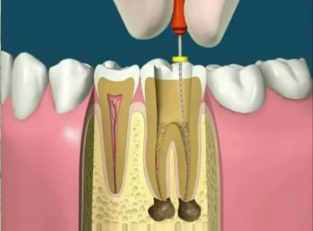 Ce înseamnă un dinte devitalizat și ce anume trebuie să știm?