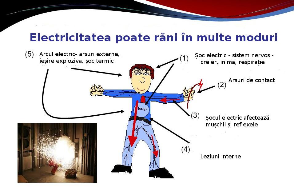 electrocutia