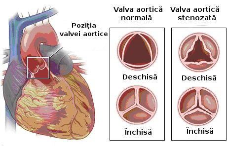 Leziunile valvei aortice
