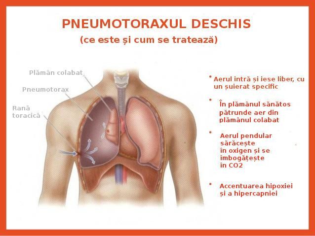 Pneumotoraxul deschis