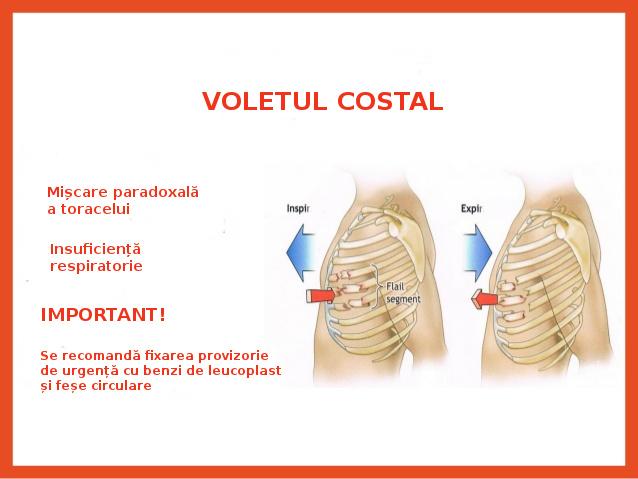 TRAUMATISME TORACICE (III) – Voletul costal