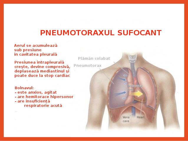 TRAUMATISME TORACICE (II) – Pneumotoraxul cu supapă (sufocant)