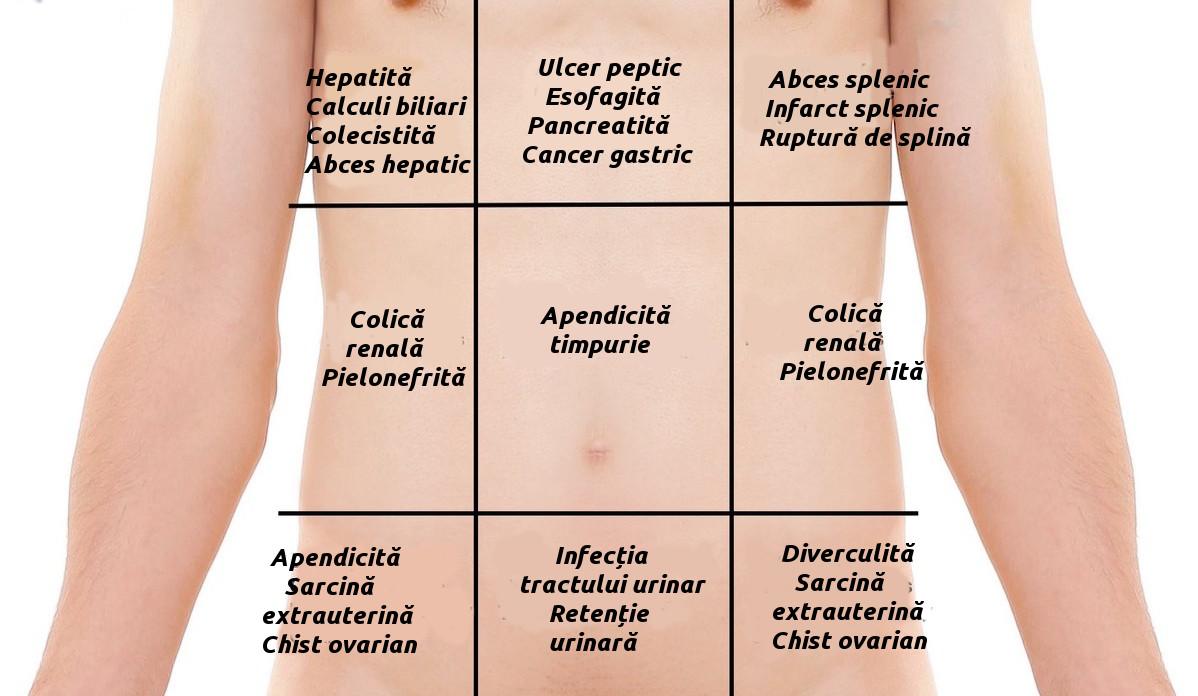Caracteristicile durerii abdominale acute