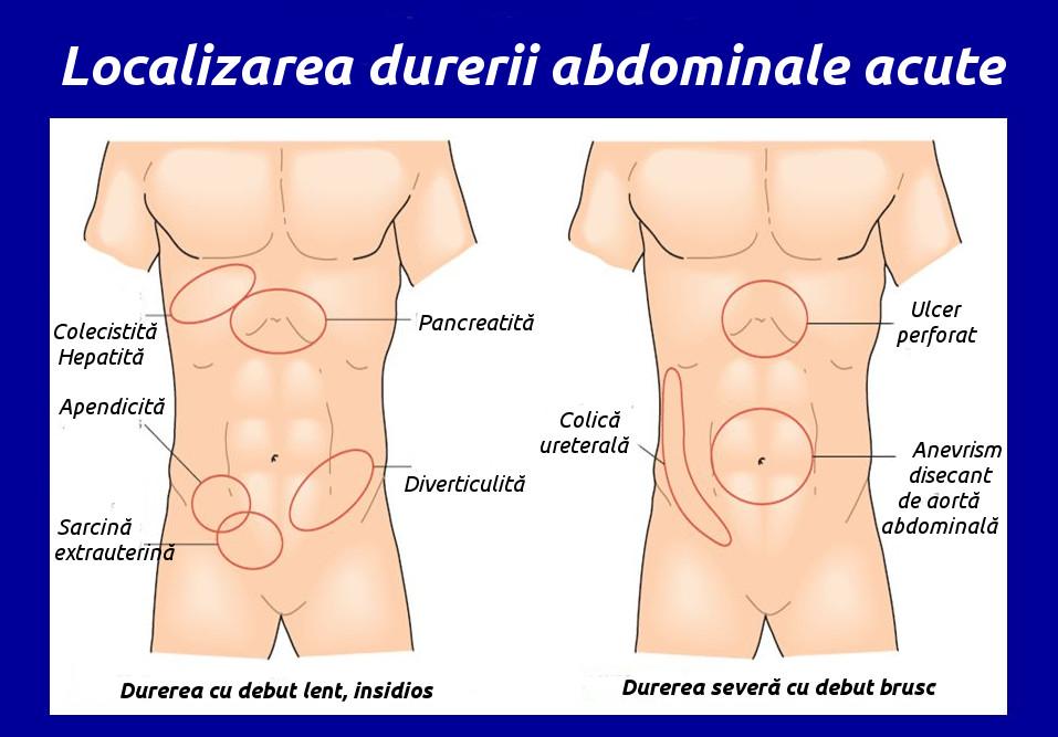 Localizarea durerii abdominale acute