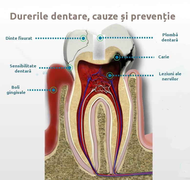 Durerile dentare, cauze și prevenție