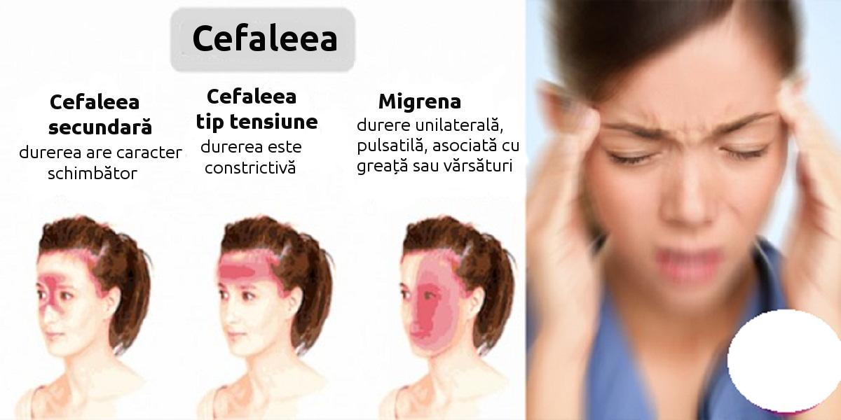 cefaleea