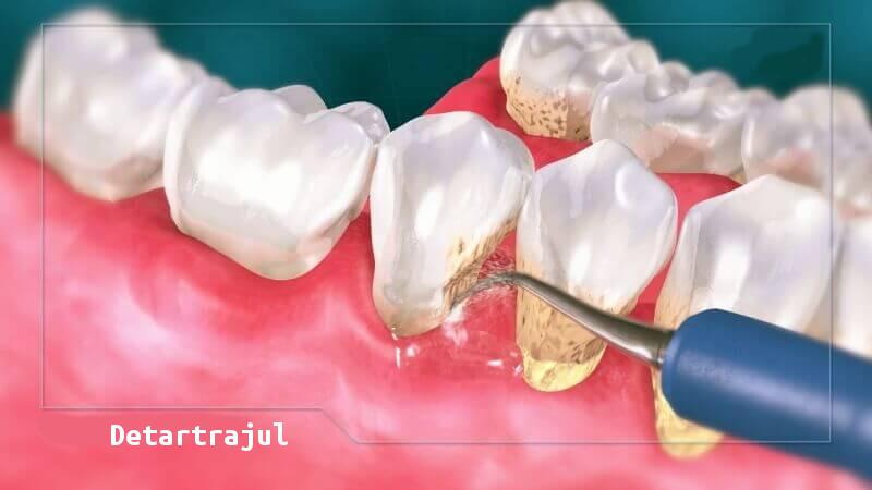 Detartrajul dinților - când și de ce este recomandat