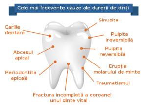 Durerea de dinți